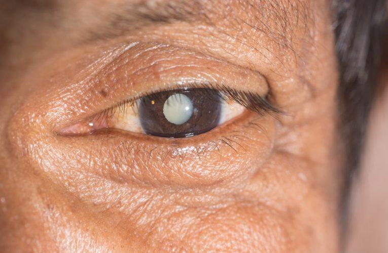 [香港眼科診所醫生 資訊] 標準與定制白內障手術